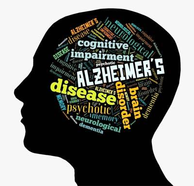 Alzheimers brain illustration